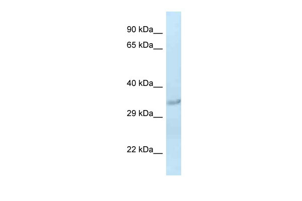 WB - Sult1c2 antibody - middle region AI12988