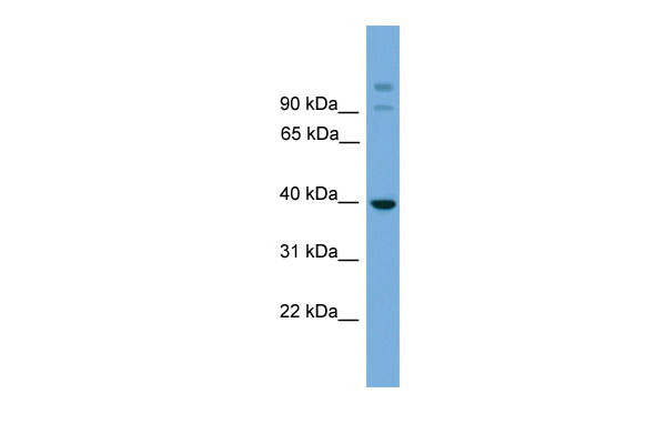 WB - SUGT1 antibody - middle region AI13390
