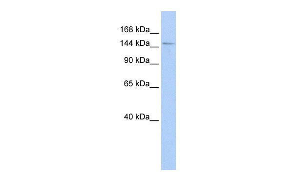 WB - HISPPD1 antibody - middle region AI13759