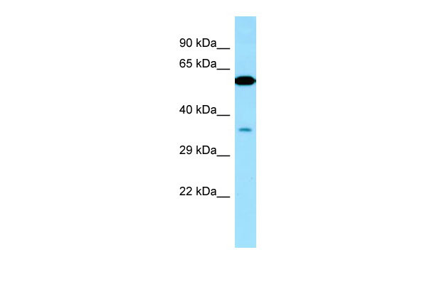 WB - VPS33A Antibody - middle region AI14769