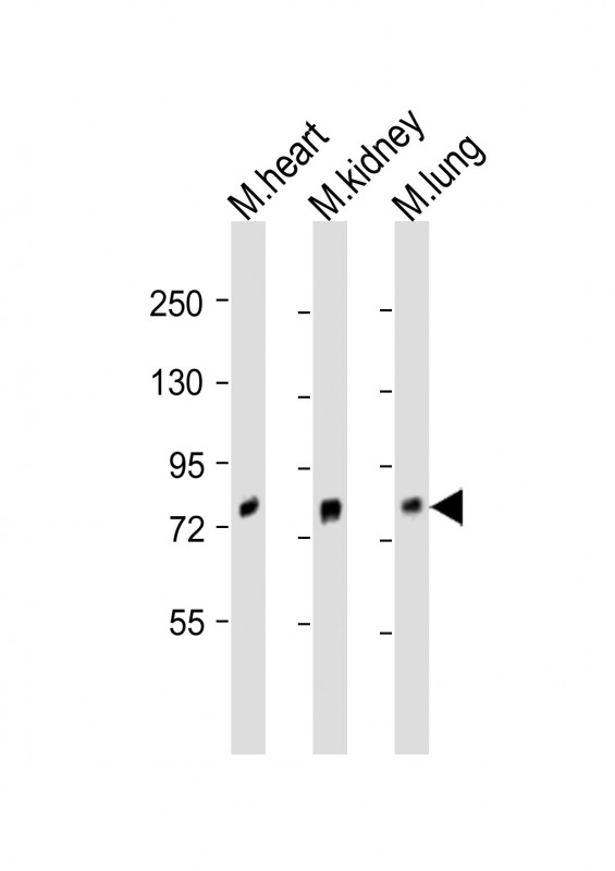 WB - MOUSE Brd7 Antibody (Center) AP20823c