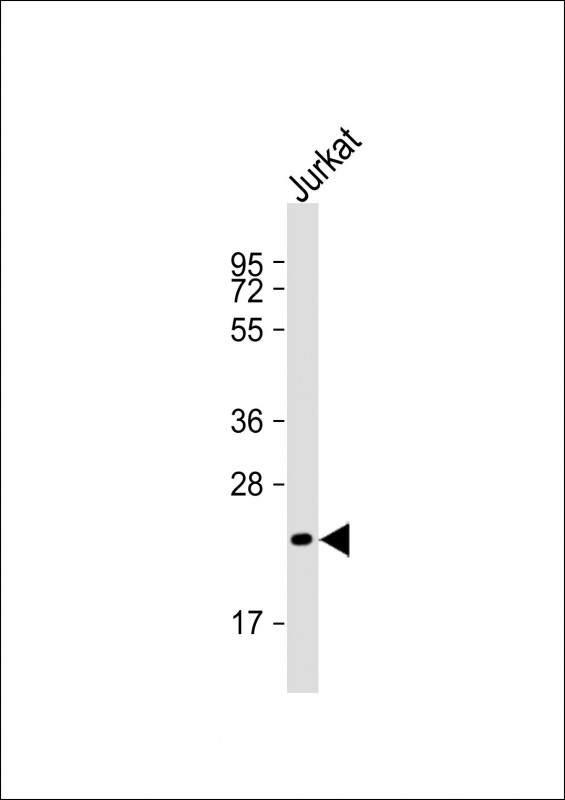 WB - FGF6 Antibody (Center) AP21588c
