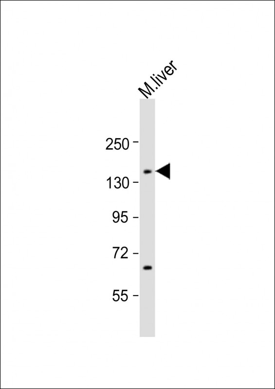 WB - Mouse Lmtk3 Antibody (Center) AP21694c