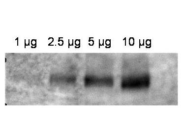 WB - ABCB1 / MDR1 / P Glycoprotein Antibody (aa262-277) ALS11750