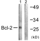 WB - BCL2 / Bcl-2 Antibody (aa46-95) ALS14615