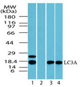 WB - MAP1LC3A / LC3A Antibody (aa1-50) ALS15239