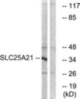 WB - SLC25A21 / ODC1 Antibody (aa134-183) ALS15503