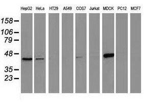 WB - CTH Antibody (clone 2D6) ALS16060