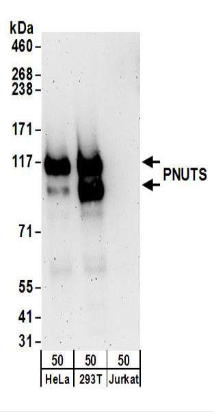 WB - PPP1R10 / PNUTS Antibody (aa350-400) ALS16324