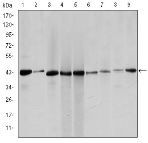 WB - ACTA2 / Smooth Muscle Actin Antibody (clone 1H8) ALS16413