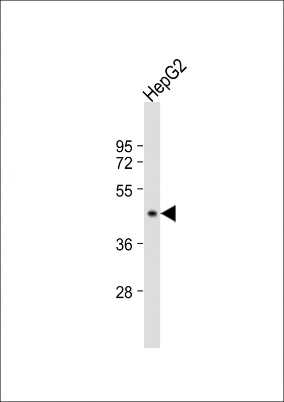 WB - G6PC Antibody (Center) AP5224c