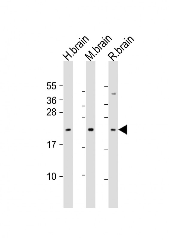 WB - FGF12 Antibody (Center) AP21840c