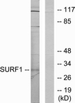 WB - SURF1 Antibody (aa171-220) ALS16707