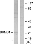 WB - BRMS1 Antibody (aa21-70) ALS16724