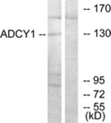 WB - ADCY1 / Adenylate Cyclase 1 Antibody (aa231-280) ALS16725