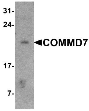 WB - COMMD7 Antibody (Internal) ALS16778