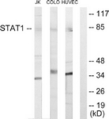 WB - STAT1 Antibody (aa141-190) ALS16960