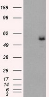 WB - FH / Fumarase / MCL Antibody (clone 9G4) ALS17057