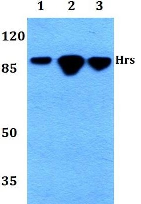 WB - HRS / HGS Antibody (aa461-510) ALS17216