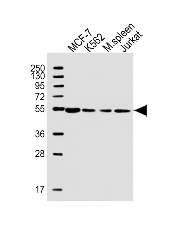 WB - PPM1H Antibody (Center) AW5604-U200