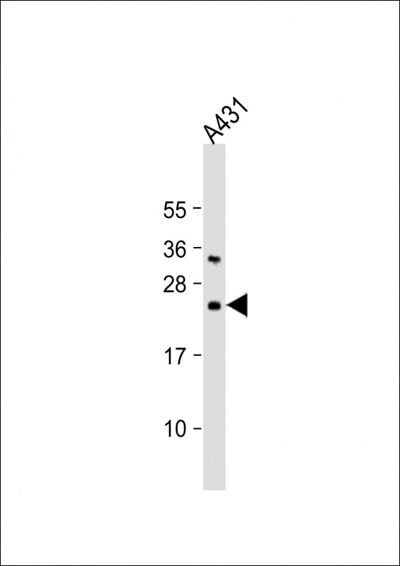 WB - Bad Antibody (Center) AP1314C