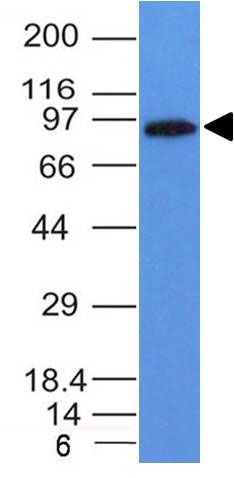 WB -  MALT1 (MALT-Lymphoma Marker) Antibody - Without BSA and Azide AH10400-100