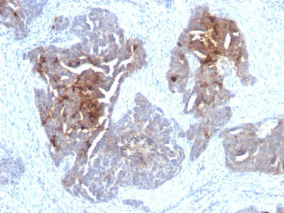 IHC -  TAG-72 / CA72.4 (Tumor-Associated Glycoprotein) Antibody - Without BSA and Azide AH10431-100