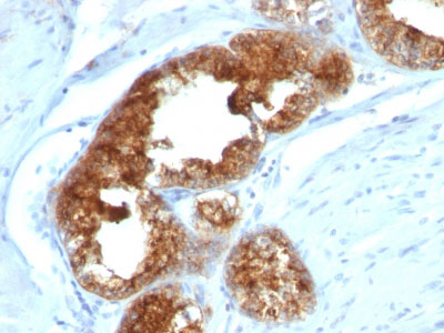 IHC -  TAG-72 / CA72.4 (Tumor-Associated Glycoprotein) Antibody - Without BSA and Azide AH10432