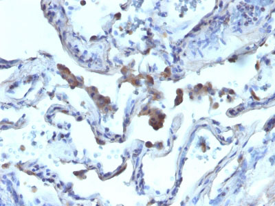 IHC -  AMACR / p504S (Prostate Cancer Marker) Antibody - Without BSA AH10471-100