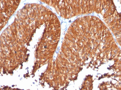 IHC -  HSP60 (Heat Shock Protein 60) (Mitochondrial Marker) Antibody - Without BSA AH10488