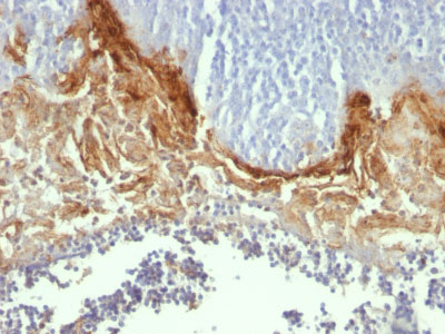 IHC -  Involucrin (Squamous Cell Terminal Differentiation Marker) Antibody - Without BSA and Azide AH10541-100