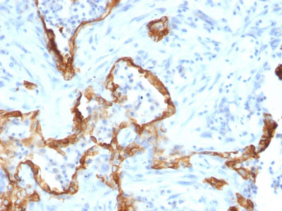 IHC -  Cytokeratin 8 (KRT8) Antibody - Without BSA and Azide AH10556