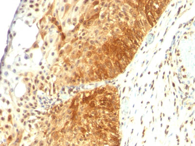 IHC -  Cytokeratin 14 (KRT14) (Squamous Cell Marker) Antibody - Without BSA and Azide AH10562-100