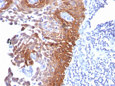 IHC -  Cytokeratin 17 (KRT17) (Basal Epithelial Marker) Antibody - Without BSA and Azide AH10565