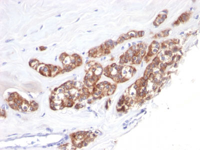 IHC -  Cytokeratin 18 (KRT18) Antibody - Without BSA and Azide AH10573-100