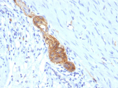 IHC -  CD56 / NCAM1 / NKH1 (Neuronal Cell Marker) Antibody - Without BSA and Azide AH10631-100