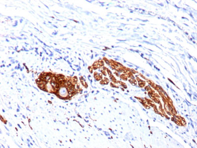 IHC -  CD56 / NCAM1 / NKH1 (Neuronal Cell Marker) Antibody - Without BSA and Azide AH10632