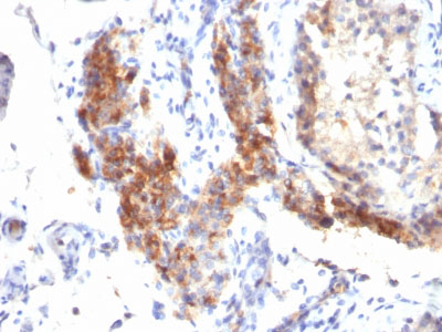 IHC -  FOXP3 (Forkhead Box Protein P3) / Scurfin Antibody - Without BSA and Azide AH10650-100