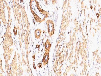 IHC -  Actin, Smooth Muscle (Leiomyosarcoma Marker) Antibody - With BSA and Azide AH10708-20