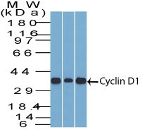 WB -  Cyclin D1 (G1-Cyclin & Mantle Cell Marker) Antibody - With BSA and Azide AH10714-20