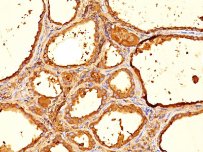 IHC -  Thyroglobulin (Thyroidal Cell Marker) Antibody - Without BSA and Azide AH10755