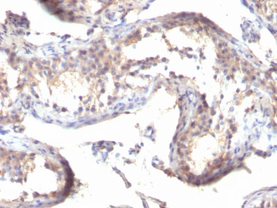 IHC -  TGF-alpha (Transforming Growth Factor alpha) Antibody - Without BSA and Azide AH10760