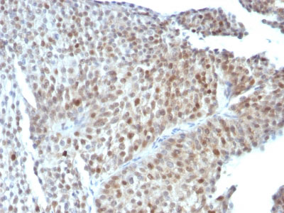 IHC -  p53 Tumor Suppressor Protein Antibody - With BSA and Azide AH10776-20