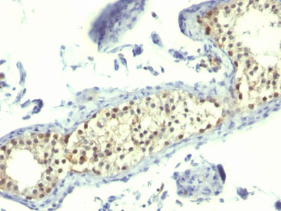 IHC -  Thymidylate Synthase (5-FU Resistance Marker) Antibody - Without BSA AH10786-100