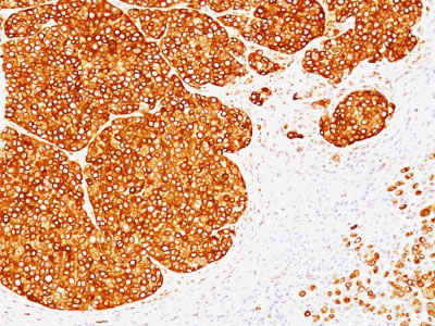 IHC -  Tyrosinase (Melanoma Marker) Antibody - With BSA and Azide AH10792-20