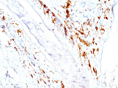 IHC -  CD1a / HTA1 (Mature Langerhans Cells Marker) Antibody - Without BSA and Azide AH10835