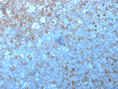 IHC -  Cdk1 / p34cdc2 Antibody - Without BSA and Azide AH10902-100