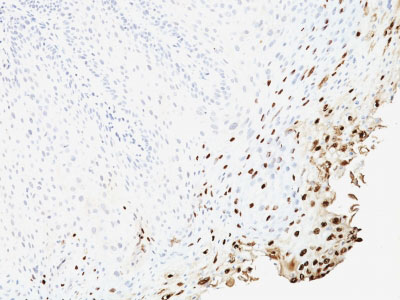 IHC -  HPV-16 (Human Papilloma Virus 16) Antibody - With BSA and Azide AH10939