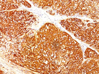 IHC -  Melanoma Marker (MART-1 + gp100 + Tyrosinase) Antibody - Without BSA and Azide AH10951-100
