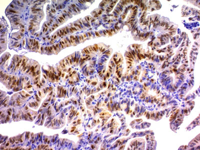 IHC -  p21WAF1 (Tumor Suppressor Protein) Antibody - With BSA and Azide AH10990